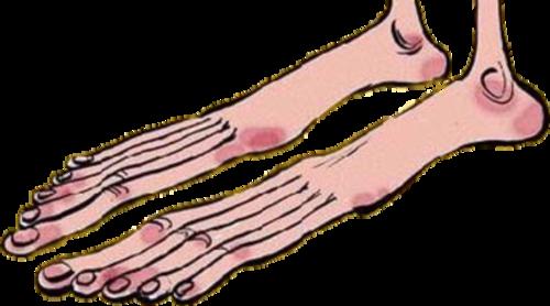 lange tenen